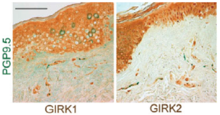 Figure GIRK staining